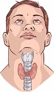 Picture showing the harms of iodine deficiency - enlarged thyroid.