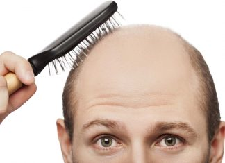 Receding hairline: a man showing significant hair loss.
