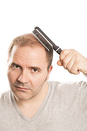A man suffering from hair loss with a receding hairline.