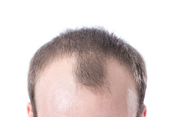 Picture of a man with a receding hairline - male pattern baldness.
